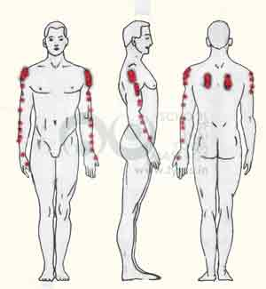 Trigger points on the Infraspinatus muscle can cause pain in down till the wrist